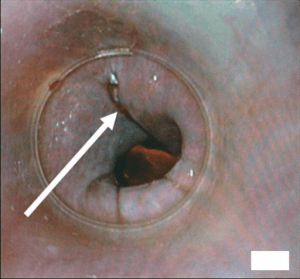 Intra-operative endoscopic view of the repair result
