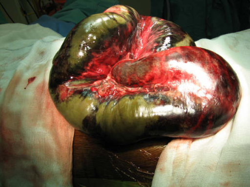 Intraoperative picture showing small bowel volvulus and necrotic bowel