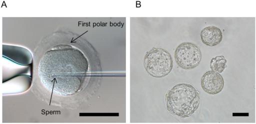 Intrazytoplasmatische-Spermieninjektion