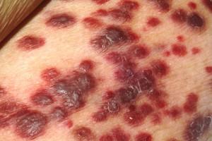 Kaposis Sacroma Lesions
