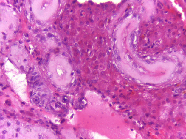 klinefelter syndrome histopathology