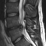 L4-l5-disc-herniation