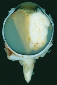 Large retinoblastoma, infiltrating a large part of the glass body and the lens