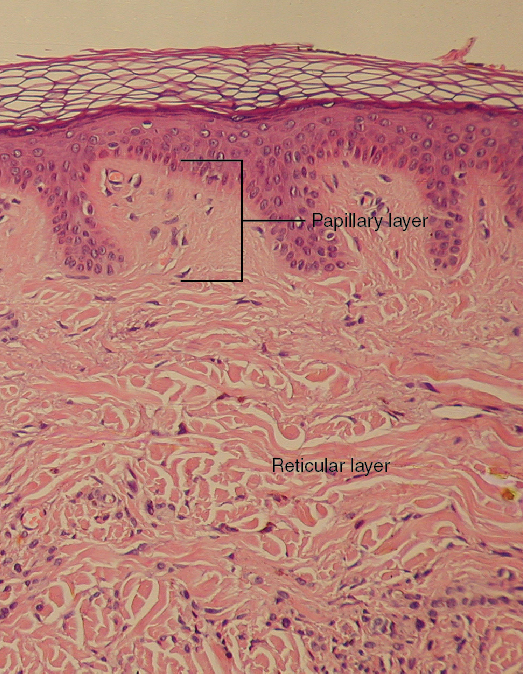 Layers of the Dermis