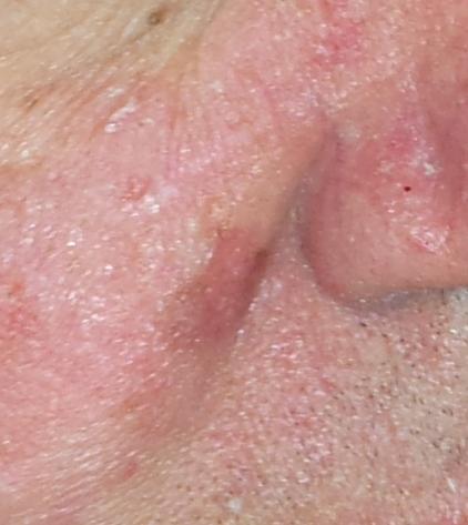 facial rash eye burning
