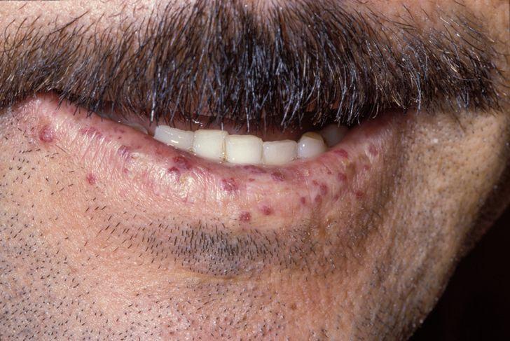 Lip telangiectases in hereditary hemorrhagic telangiectasia
