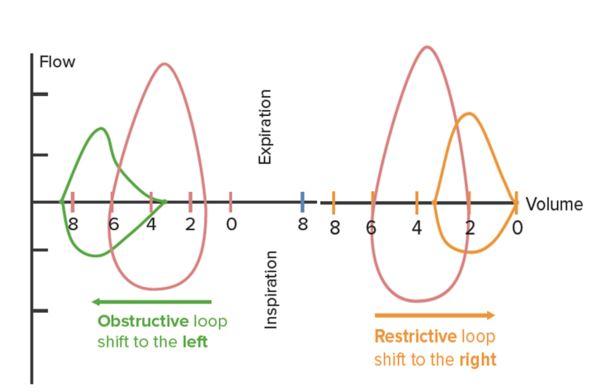 Loop Spirometry