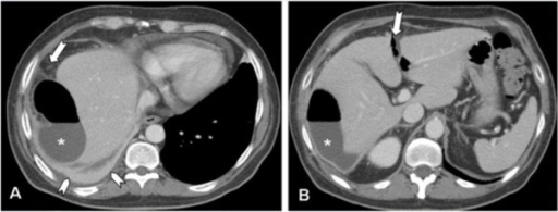 MDCT of upper abdomen - imaging studies