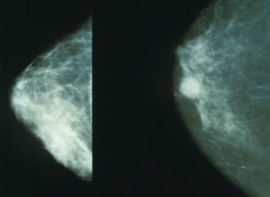 Mammography breast cancer