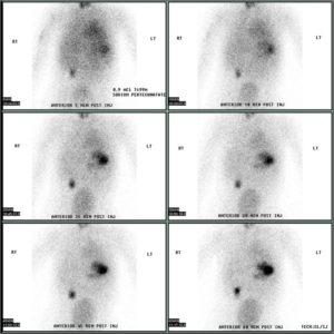 Meckel's diverticulum by technetium 99m pertechnetate scan