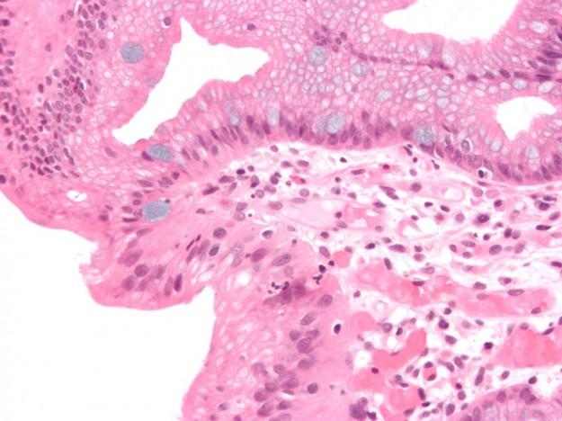 Micrograph of Barrett's esophagus