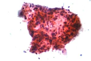Micrograph of squamous carcinoma