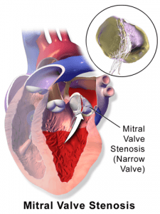 Mitral valve stenosis