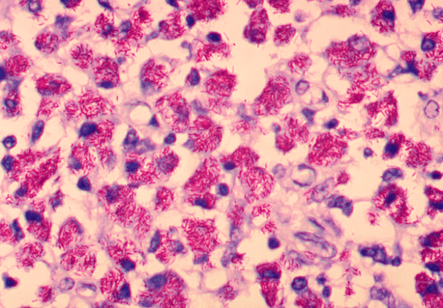 Mycobacterium avium-intracellulare