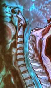 Neck-MRI-arnold-chiari