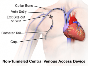 Non-tunneled central venous catheter.