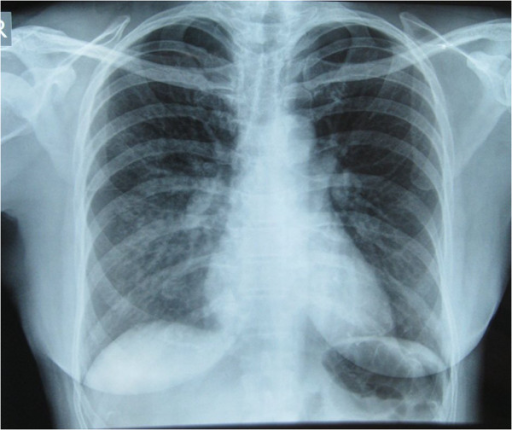 Noncardiogenic Pulmonary Edema