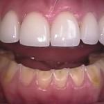 Oral Manifestation of Bulimia.