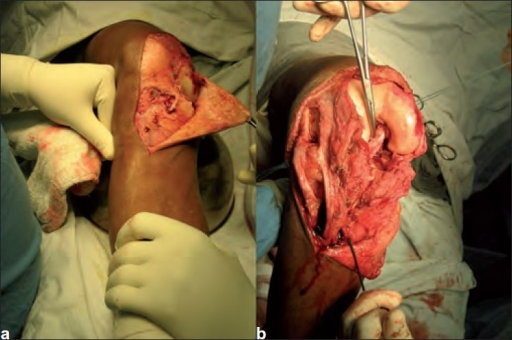 Neglected irreducible posterolateral knee dislocation
