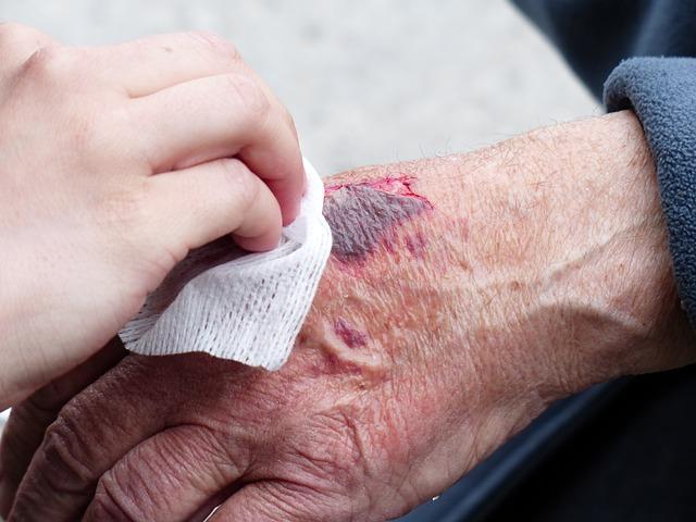 Pain of Hand