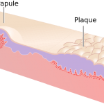 Papule and Plaque