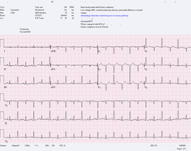 Pericardial effusion with tamponade