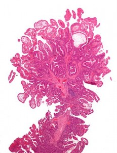 Peutz Jeghers syndrome polyp