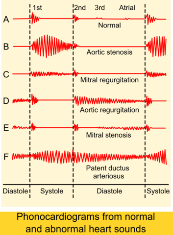 Phonocardiograms-from-normal-and-abnormal-heart-sounds