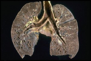 Photograph of a Lung with Sarcoidosis