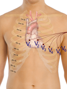 Placement of the precordial leads in electrocardiography