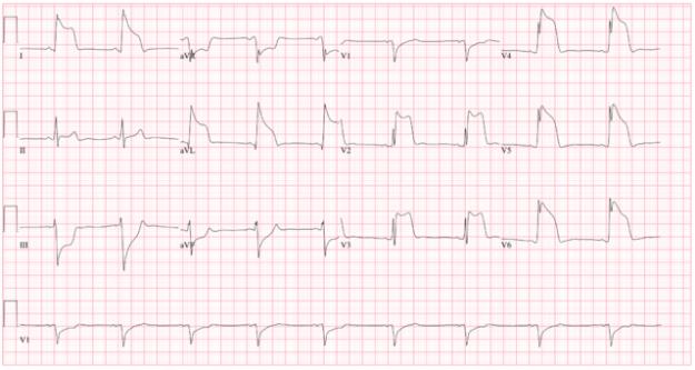 Prinzmetal angina