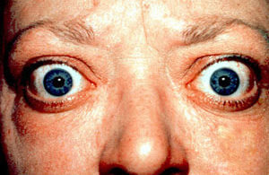 Proptosis-and-lid-retraction-from-Graves'-Disease