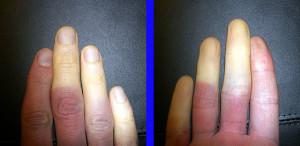 Raynauds' Disease