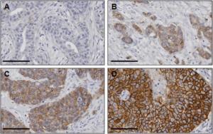 Representative immunohistochemical staining images of HER-2