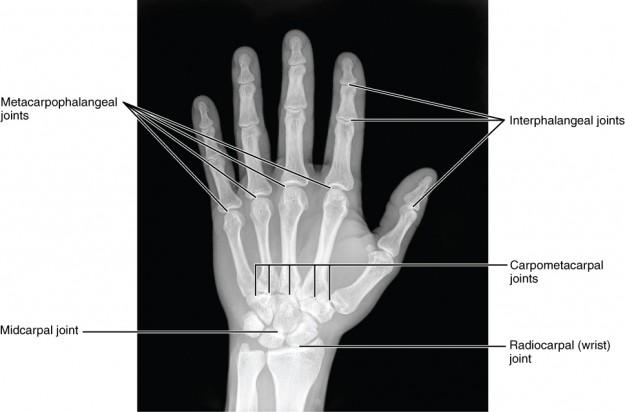 Radiograph of Hand
