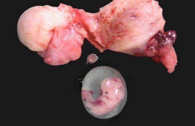 Ruptured cornual ectopic pregnancy