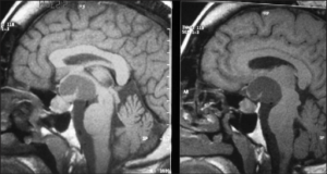 Sagittal MRI brain with enlarged pituitary and suprasellar cyst