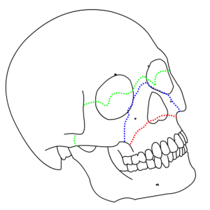 Le Fort fractures – types