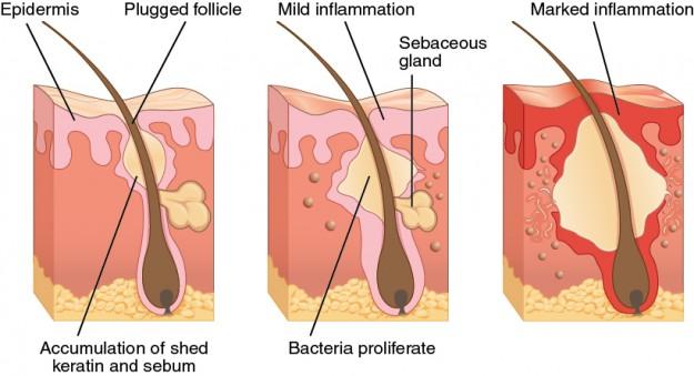 Schema zeigt die Bildung von Akne