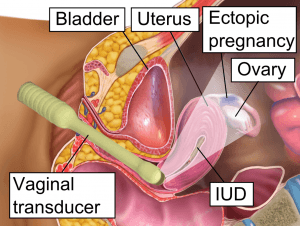 Schematic figure of vaginal ultrasound in ectopic pregnancy
