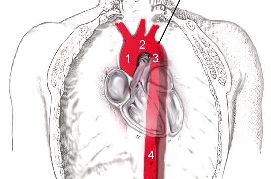 Scheme of aortic dissection 2