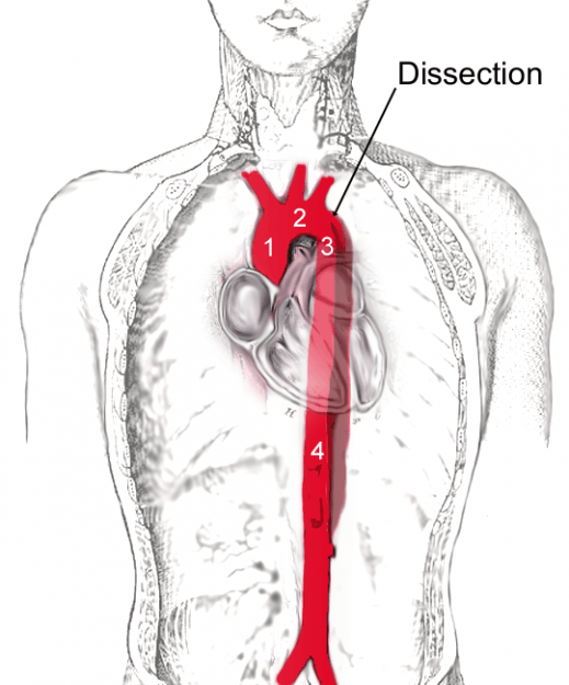 Scheme of aortic dissection