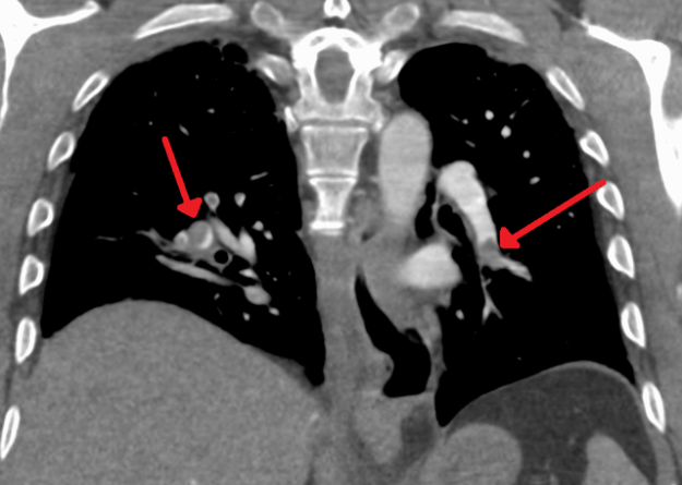 Segmental and subsegmental pulmonary emoboli on both sides