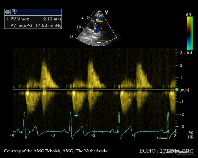 Severe pulmonary regurgitation