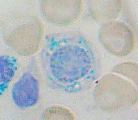 Sideroblast, as seen in sideroblastic anemia