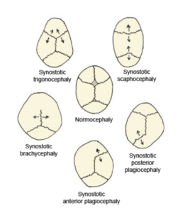 Single-suture-synostosis