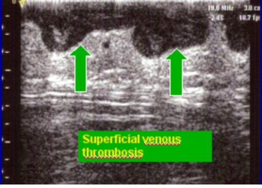 Superficial venous thrombosis