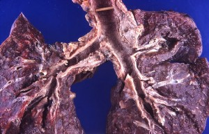 The mucosa of the trachea and bronchi is ulcerated and granular.