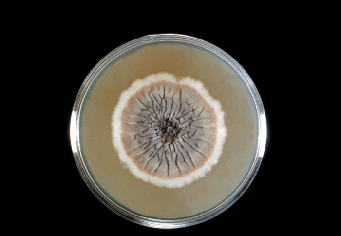 This Sabouraud's dextrose agar plate culture is growing the fungus Sporothrix schenckii.