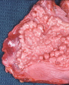 This fibrous plaque on the diaphragmatic pleura has a verrucous appearance